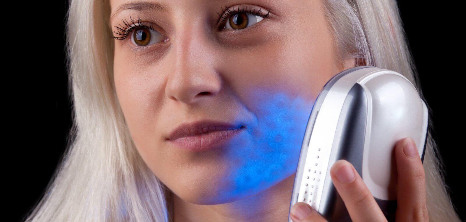 Lässt sich Akne mit Lichttherapie bekämpfen?